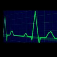 Monitor de Pulsaciones