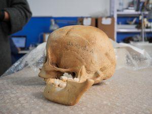 Cráneo siglo II-III de esta era